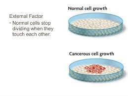 cancer cell growth plates